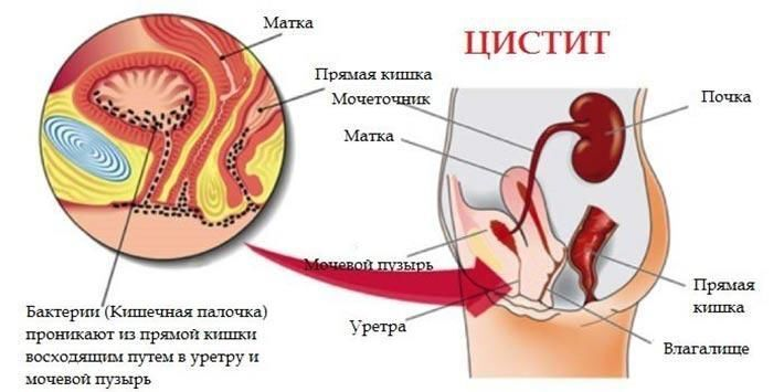 Возникновение заболевания