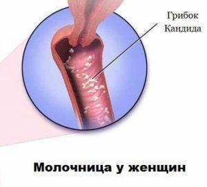 Протекание болезни
