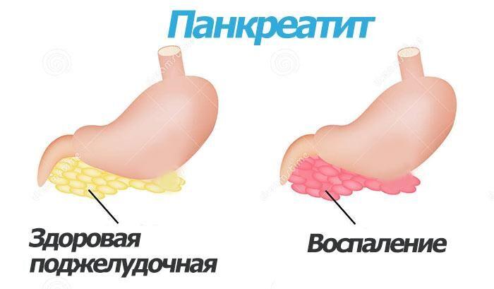 Здоровый и больной орган