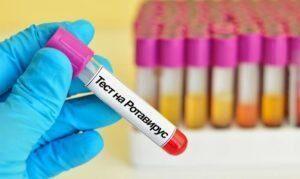Тест на ротавирус