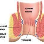 Трещина в анусе