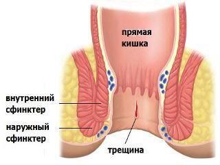 Лечим дома анальные трещины возникшие от анального секса
