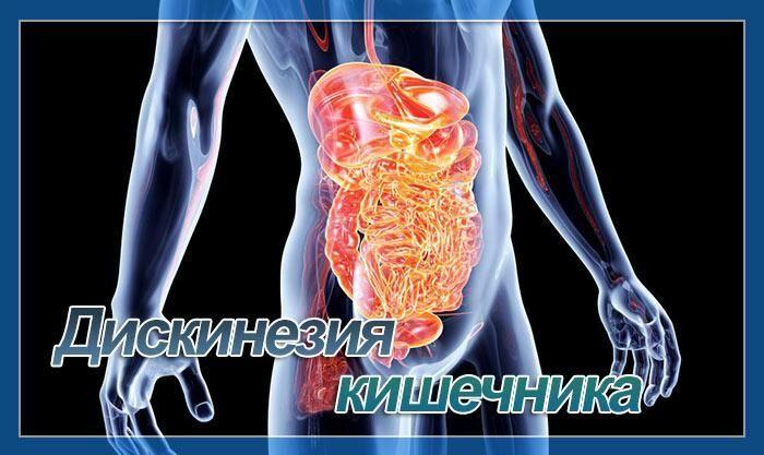 дискинезия 12 перстной кишки лечение