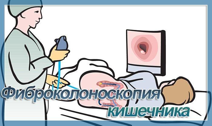 фкс кишечника