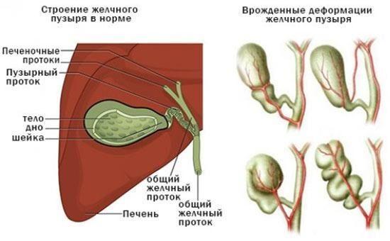 Перегиб органа