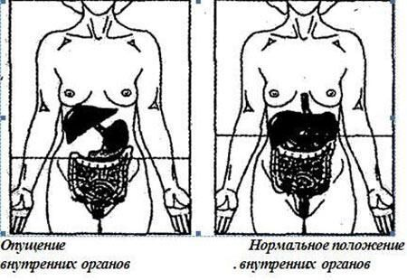 Опущение у женщин