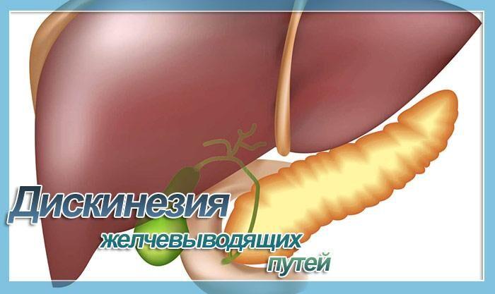 Дискинезия желчевыводящих путей: симптомы и лечение, код по мкб 10