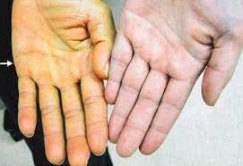Перинатальный гепатит с что это такое