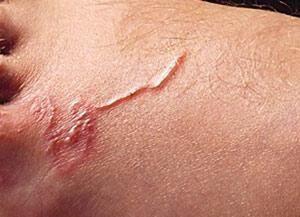 Токсокара под кожей