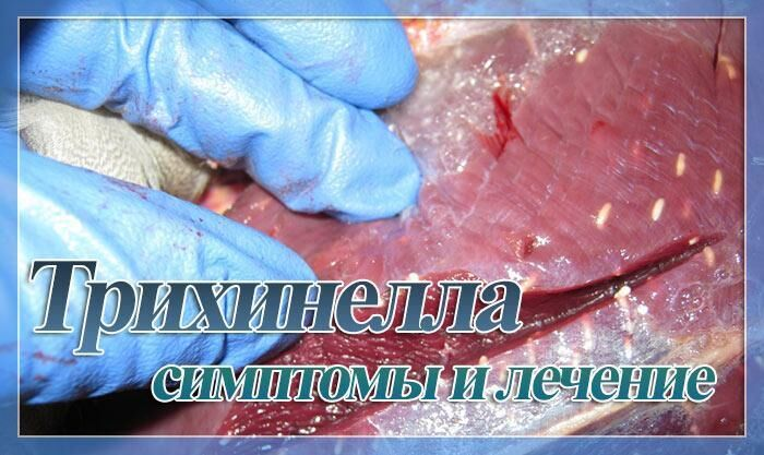 Трихинеллез симптомы у человека