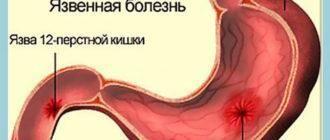 Язва 12 перстной кишки: симптомы и лечение, диета