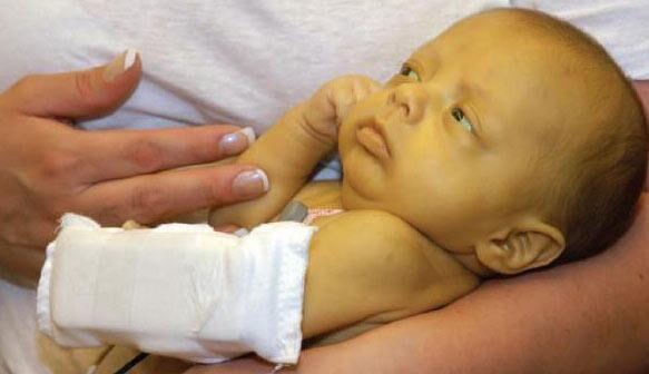 Не нормальный уровень билирубина у новорожденных