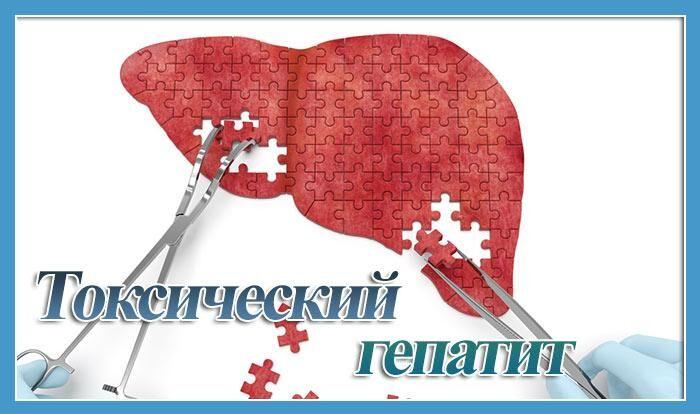 Токсический гепатит печени симптомы и лечение прогноз