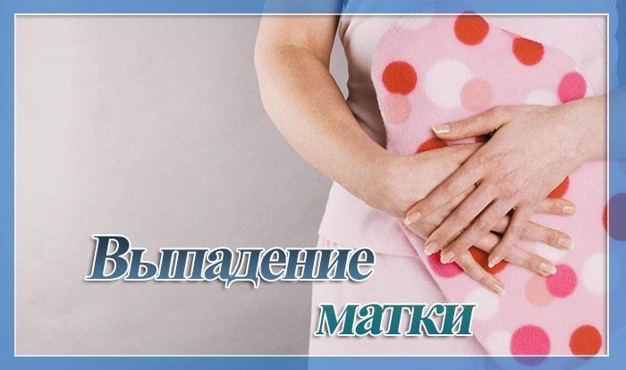 Выпадение матки у женщин: причины и лечение
