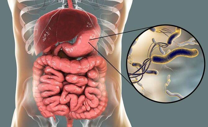Helicobacter pylori внутри желудка человека