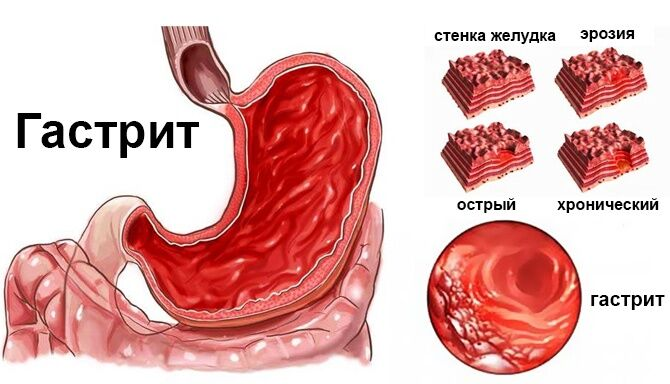 Как выглядит желудок при гастрите