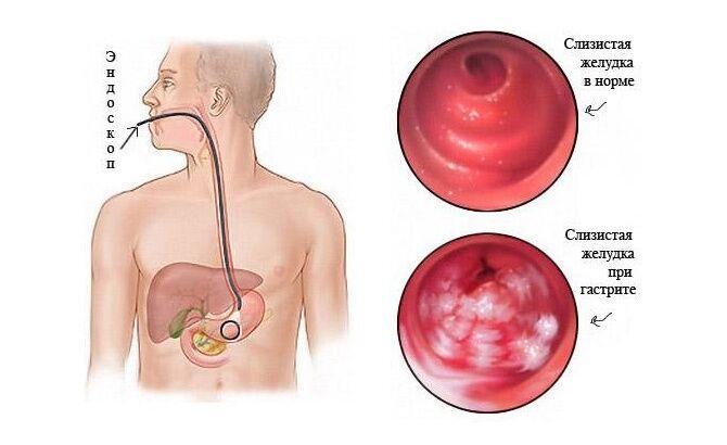 Слизистая желудка в норме и при гастрите