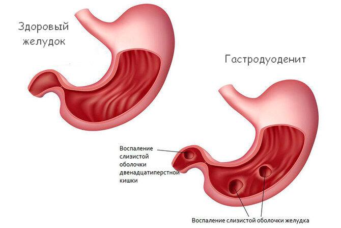 Желудок здоровый и с гастродуоденальной патологией