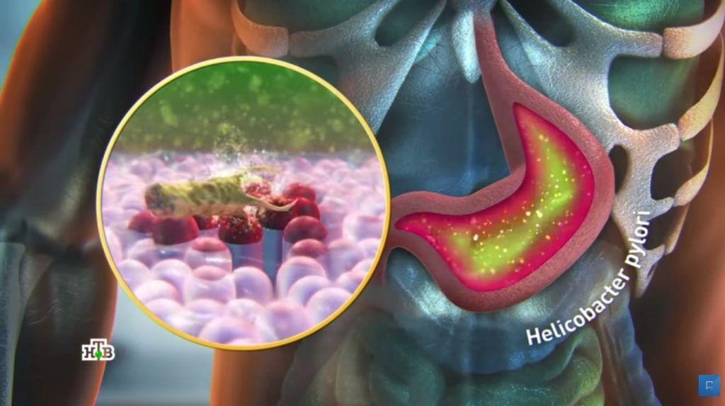 Helicobacter pylori - одна из причин возникновения гастрита
