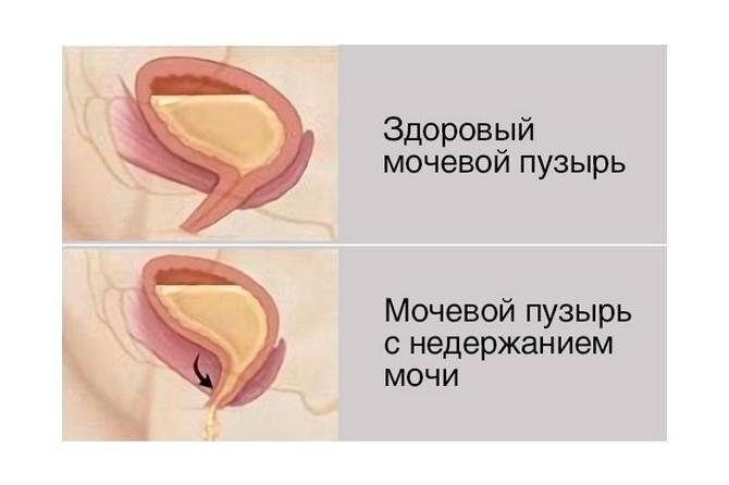 Мочевой пузырь здоровый и с недержанием