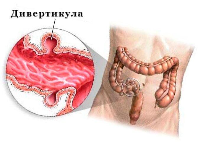 Дивертикула в кишечнике