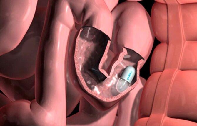Капсульная эндоскопия кишечника