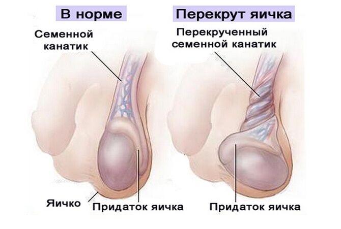 Перекрут яичек