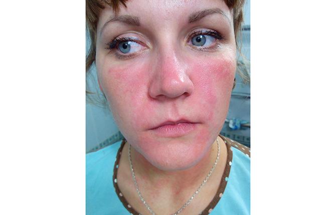 Красная сыпь на лице при панкреатите