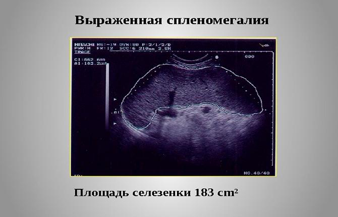 Узи диагностика селезенки – эхопризнаки увеличения органа