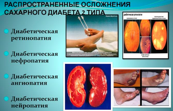 Осложнения диабета 2 типа